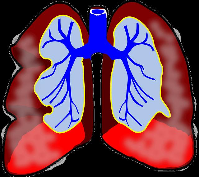 SOP pemberian dan pemasangan Oksigen